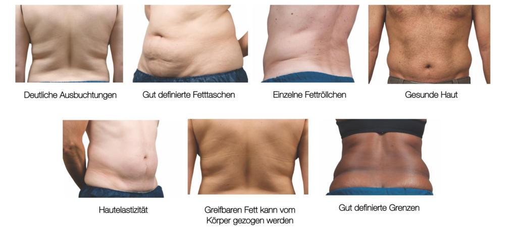 Coolsculpting® eignet sich besonders für Fettdepots an Bauch oder Hüfte